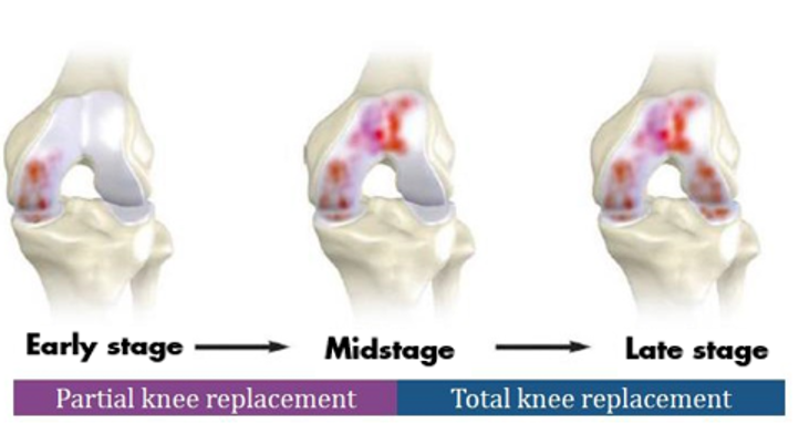 knee stages