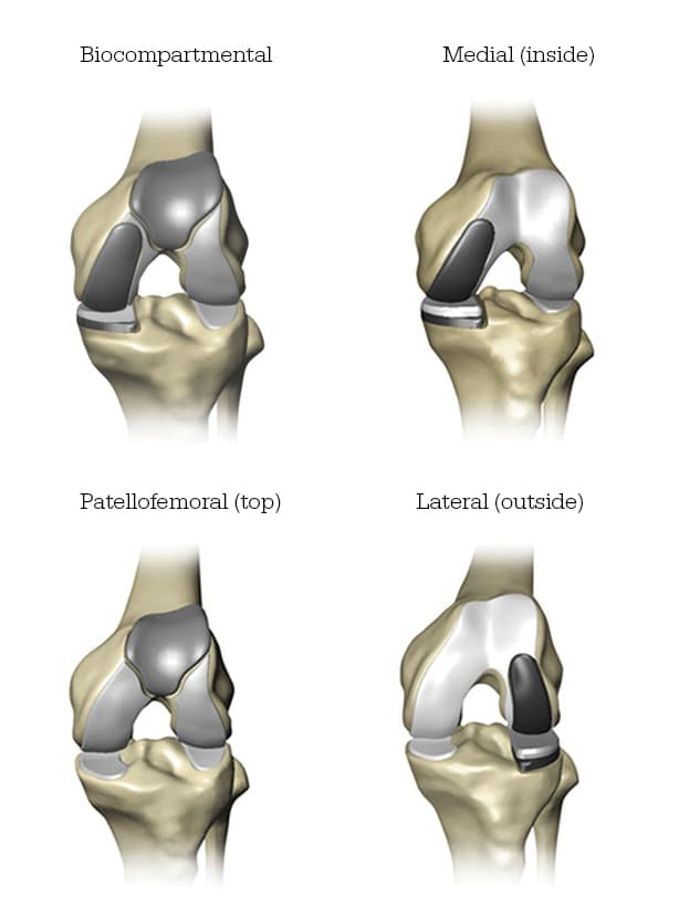 Mako partial knee implants