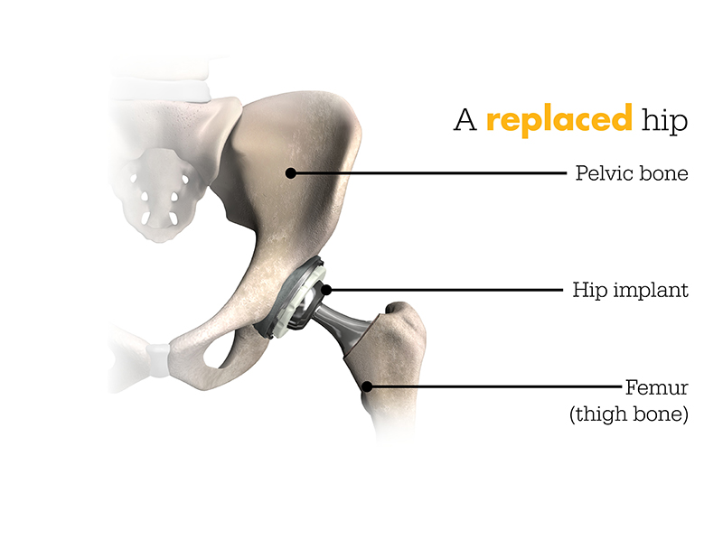 a replaced hip
