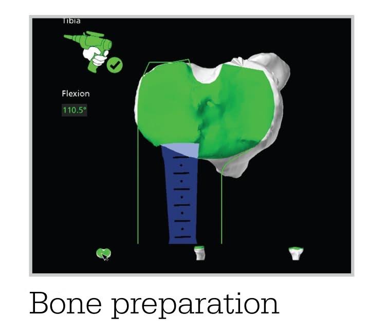 Mako Bone prep